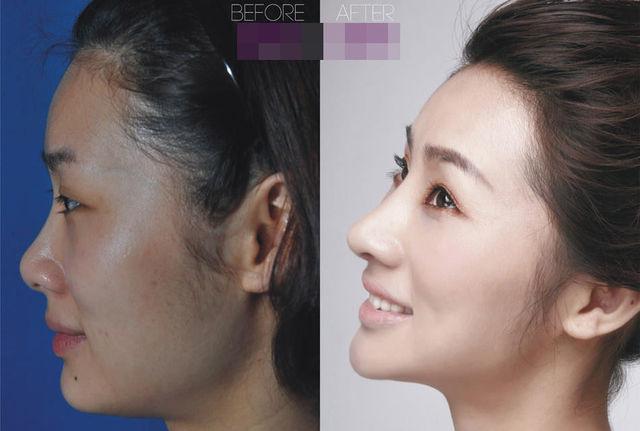 chirurgie-plastique-chine-02