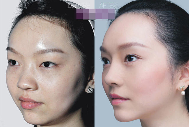 chirurgie-plastique-chine-05