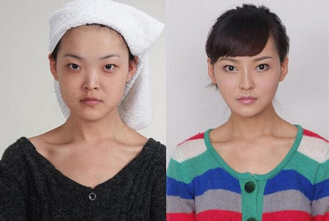 chirurgie-plastique-chine-06