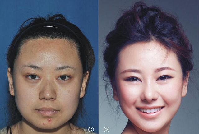 chirurgie-plastique-chine-07
