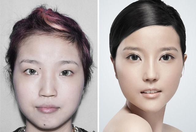 chirurgie-plastique-chine-10