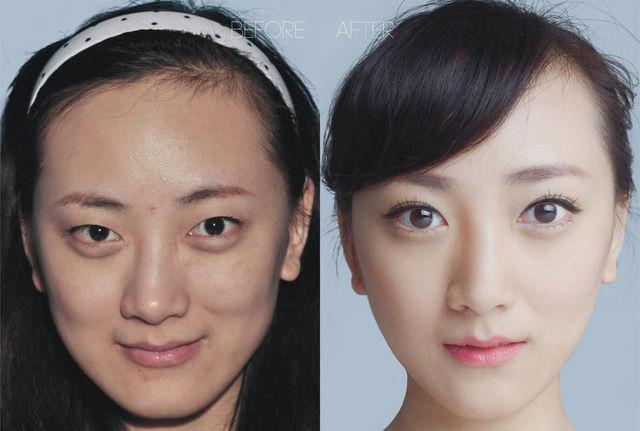 chirurgie-plastique-chine-12
