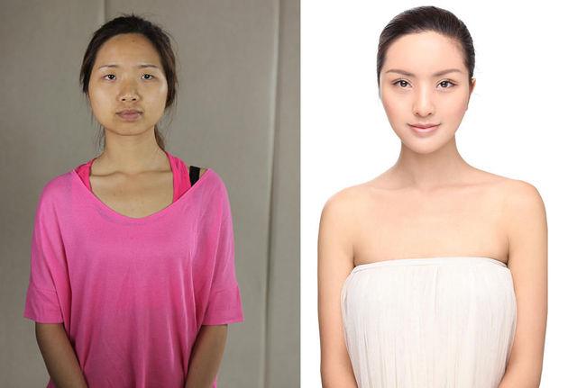 chirurgie-plastique-chine-16