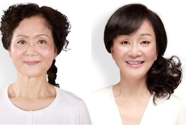 chirurgie-plastique-chine-17