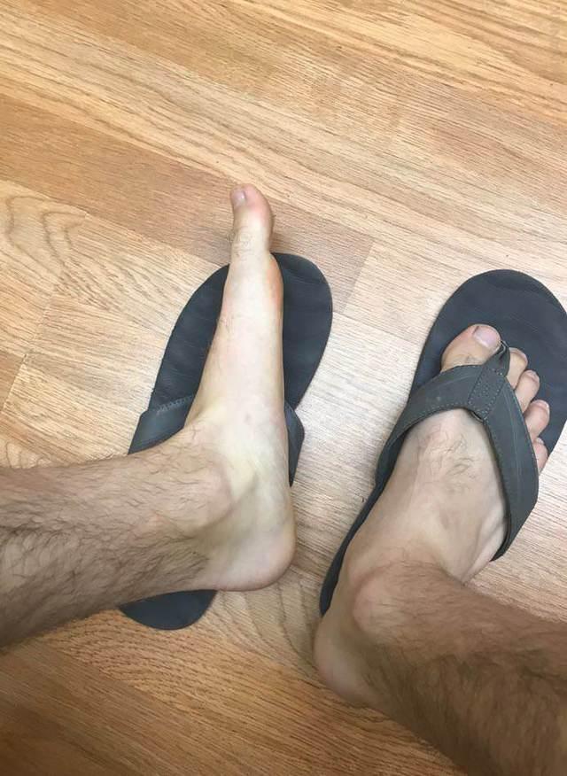 pieds-vraiment-plats