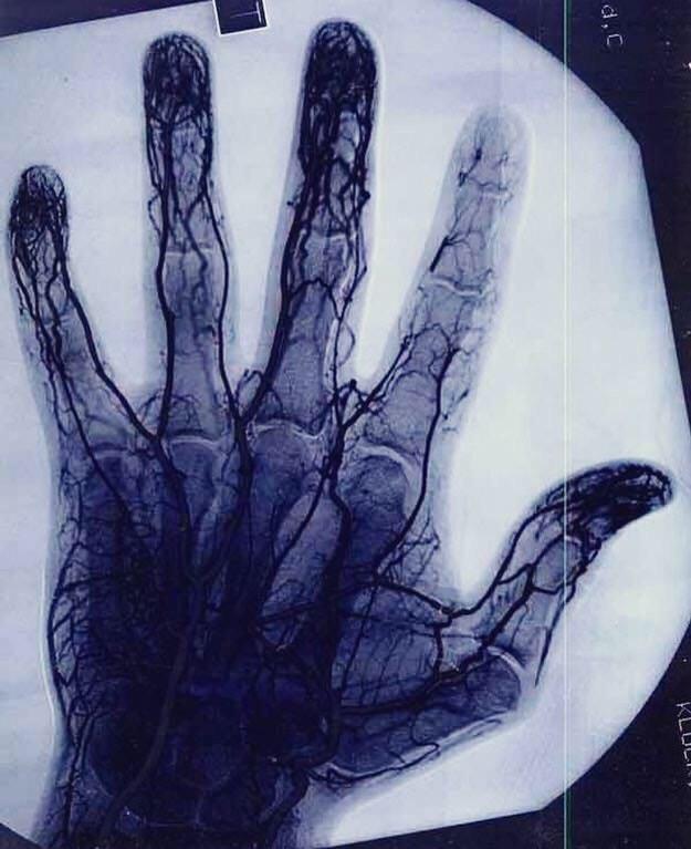 vaisseaux-sanguins-professionnel-yoyo