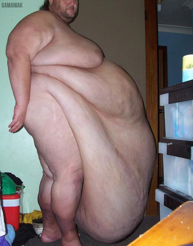 homme-obese-avec-ventre-qui-pendouille