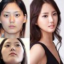 avant-et-apres-chirurgie-esthetique-coreenne