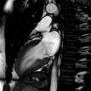 miniature pour Battement de coeur en temps réel sous IRM