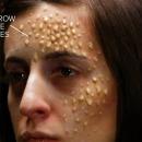 miniature pour A quoi ressemblent les maladies mortelles sur votre peau ?