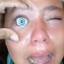 miniature pour Un oeil de poupée bloqué dans la cornée d'une fille