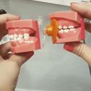 miniature pour Comment la tétine déforme les dents des enfants